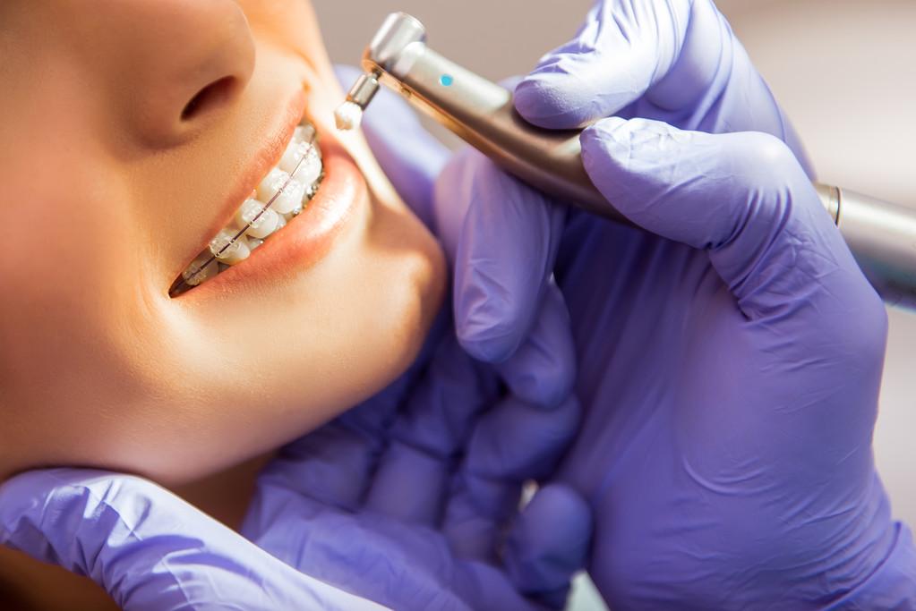 牙齒幾乎承包了一個人70%的顏值,80%的氣質 ,整