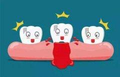 牙齦炎的原因和治療