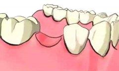 一顆牙缺失怎麼修復