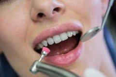 嬰幼兒舌系帶周圍為什麼發生潰瘍?